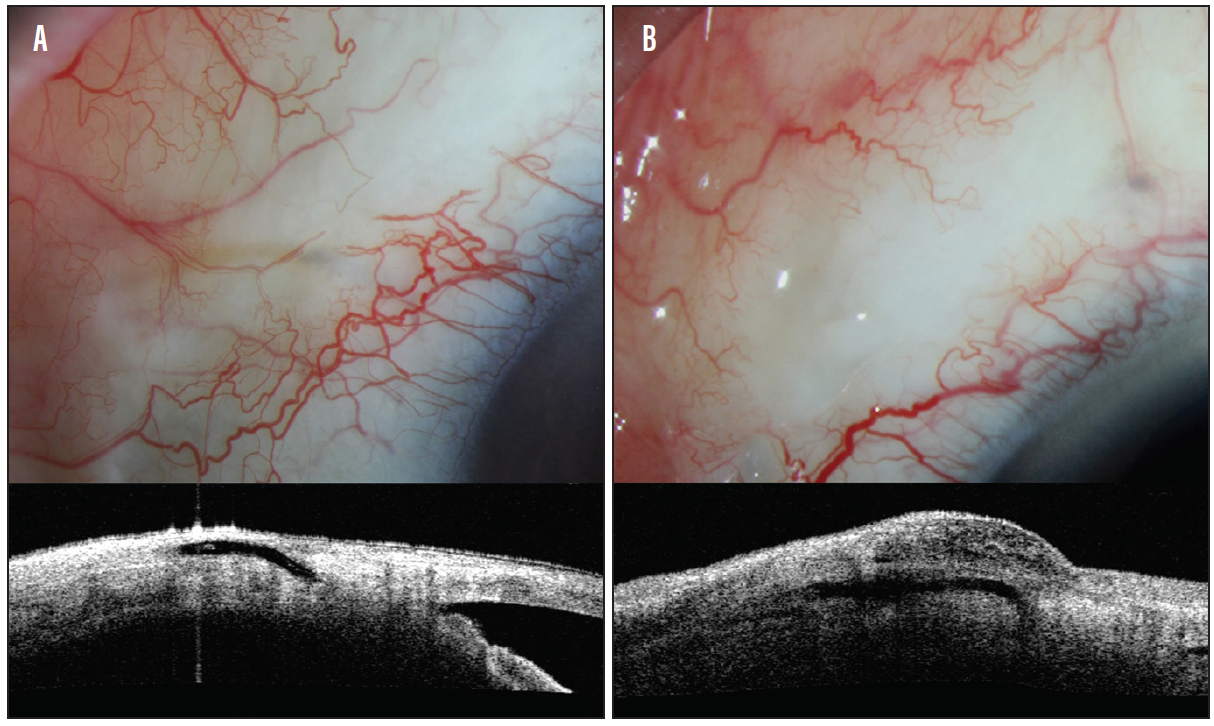 Glaucoma Today - Optimizing MIGS Outcomes (March/April 2018)