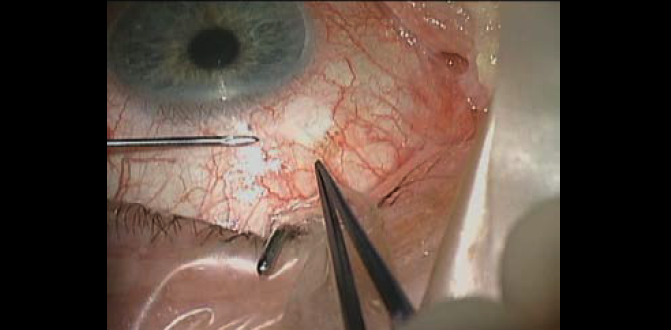 Glaucoma Today - XEN Needling Case Examples (March/April 2019)