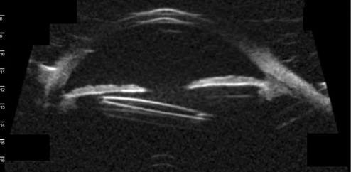 Glaucoma Today - Recurrent UGH Syndrome in an Eye With a