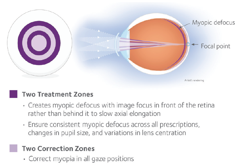 <p>Figure 1. MiSight 1-day soft contact lens.</p>