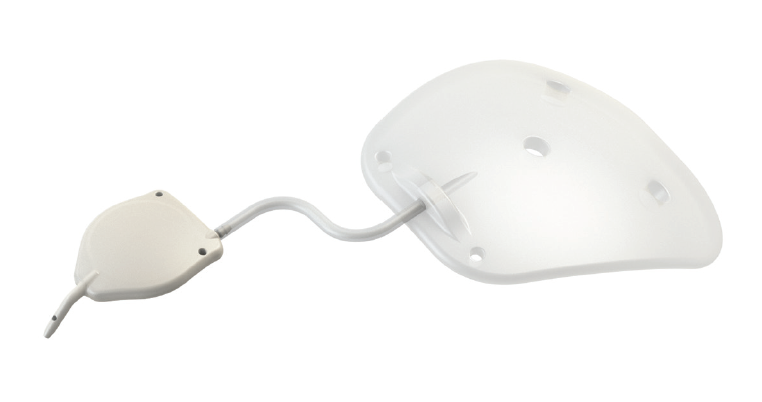 <p>Figure 1. The eyeWatch implant connected to a nonvalved tube shunt (eyePlate).</p>