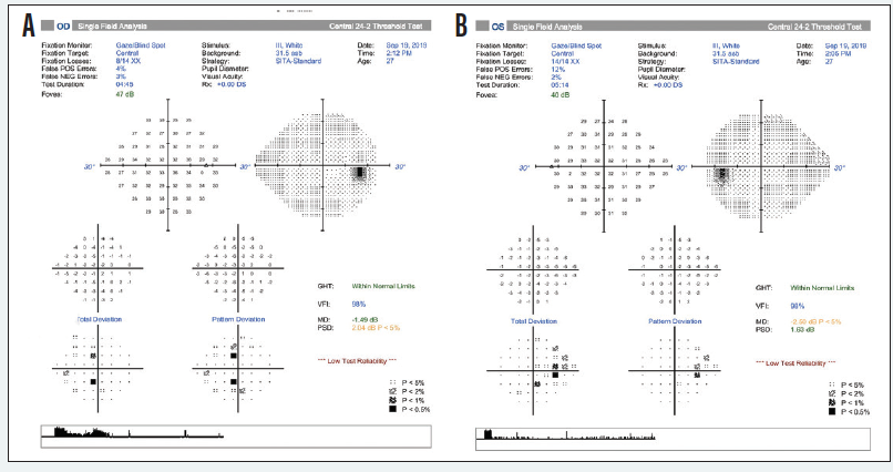 <p>Figure 6. Visual field analysis of the right (A) and left (B) eyes.</p>