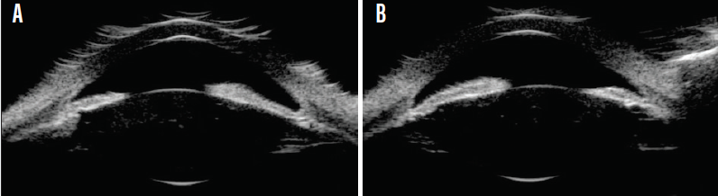 <p>Figure 7. Ultrasound biomicroscopy of the right (A) and left (B) eyes.</p>
