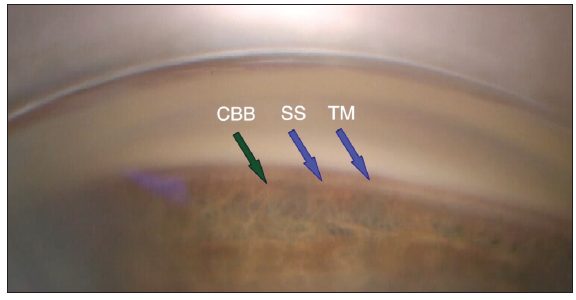 <p>Figure 2. View of the angle, depicting the ciliary body band (CBB), the suprachoroidal space (SS), and the trabecular meshwork (TM).</p>