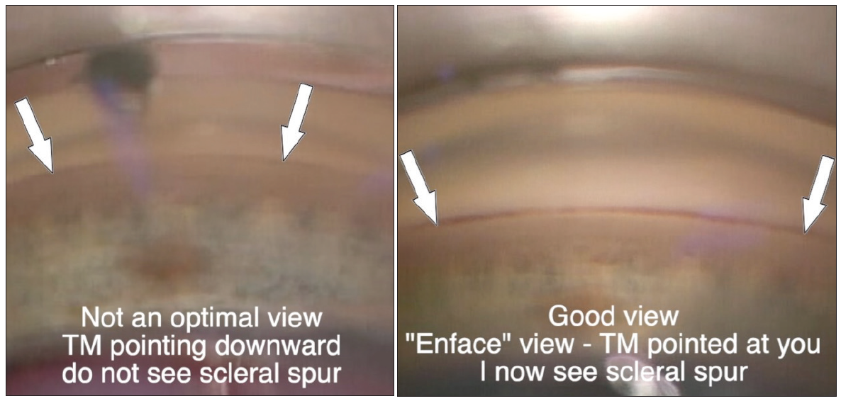 <p>Figure 3. Gonioscopic view of the TM facing downward (A) and en face (B).</p>